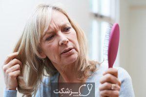 طاسی با الگوی زنانه (آلوپسی آندروژنیک) چیست؟   پزشکت