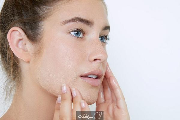 چگونه از پوست حساس مراقبت کنیم؟ | پزشکت