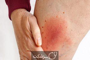سلولیت، از علائم تا درمان | پزشکت