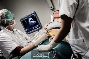 آمنیوسنتز | پزشکت