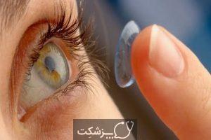 علت قرمزی چشم   پزشکت