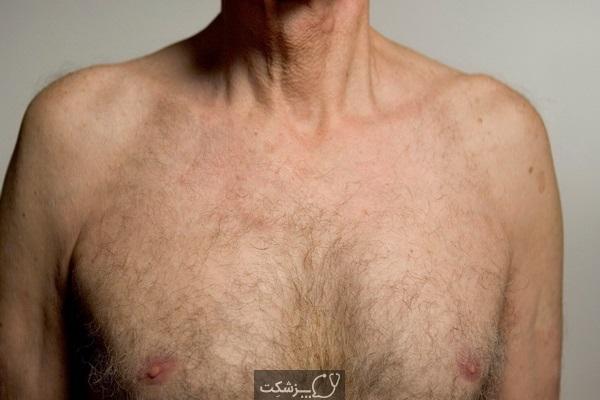 نوک سینه اضافی یا نوک سینه سوم   پزشکت