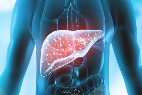 بیماری کبد چرب غیرالکلی 4 | پزشکت
