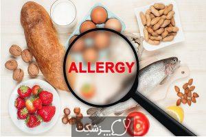 رایج ترین حساسیت های غذایی | پزشکت