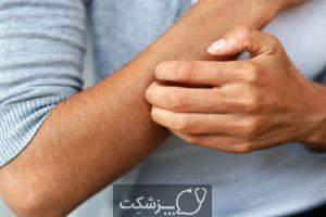 ترانس آمینیت | پزشکت