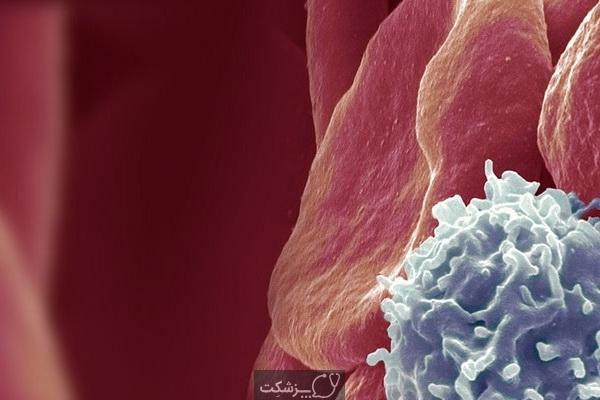 10 علائم خطرناک سرطان خون را بشناسید. 1 | پزشکت