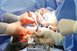 فتق اینگوینال | پزشکت