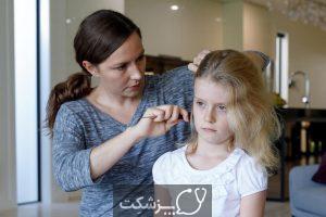 آلوپسی آره آتا در کودکان | پزشکت