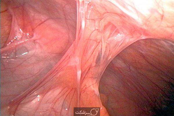 چسبندگی آندومتریوز 3 | پزشکت