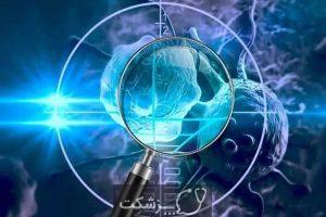 انواع شیمی درمانی   پزشکت