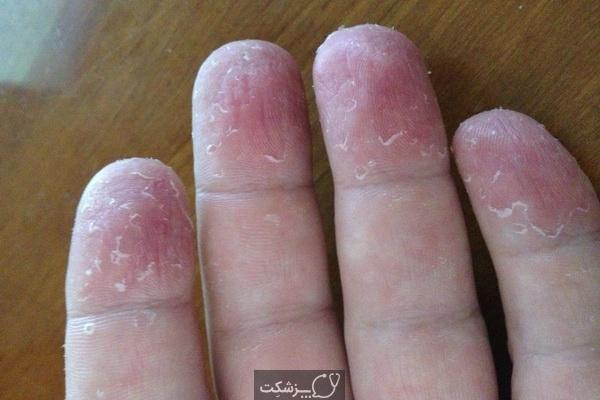 پوسته پوسته شدن انگشتان دست | پزشکت