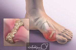 نقرس توفوسی 3 | پزشکت