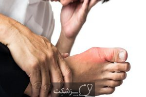 نقرس توفوسی 1 | پزشکت