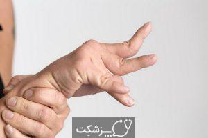 اختلالات حرکتی   پزشکت