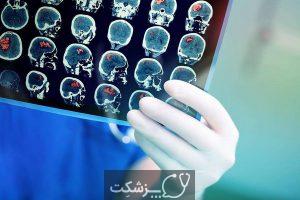 علائم عصبی بیماری کرونا | پزشکت