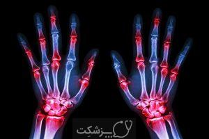 بررسی های بهداشتی برای آقایان   پزشکت