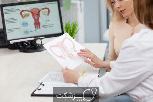 علت ترشحات زیاد واژن 2 | پزشکت