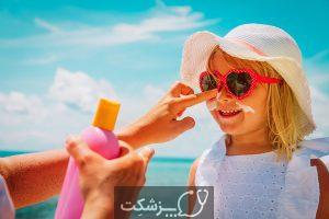 درمان خانگی برای آفتاب سوختگی | پزشکت