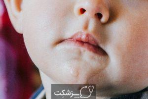 بزاق بیش از حد در کودکان | پزشکت