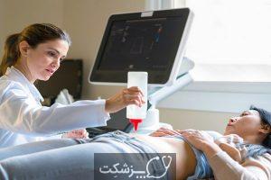 چسبندگی آندومتریوز 1 | پزشکت