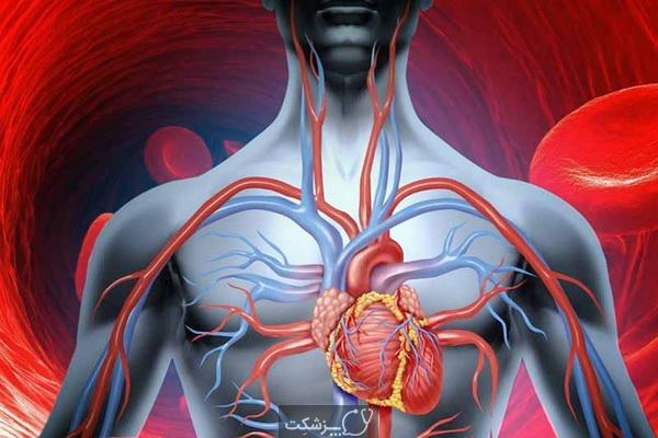 رژیم غذایی برای بهبود گردش خون 5 | پزشکت