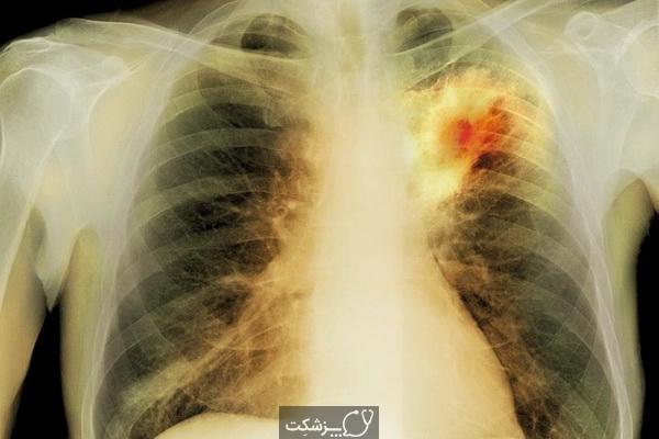آبسه ریه چیست؟ | پزشکت