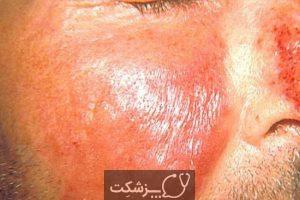 شایع ترین عفونت های باکتریایی پوست | پزشکت