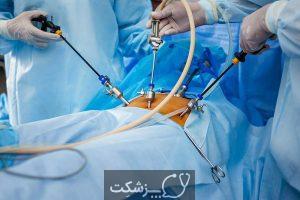 جراحی محدود 2 | پزشکت