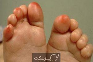 ورم کف پا چیست؟ 5 | پزشکت