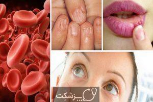5 تفاوت عمده بین سرطان خون و لنفوم 5 | پزشکت