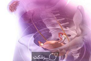 عفونت های پس از زایمان 3 | پزشکت