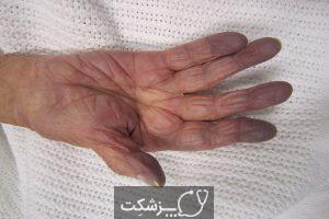 کمبود اکسیژن ناشی از کرونا | پزشکت