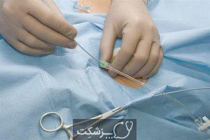 جراحی محدود 5 | پزشکت
