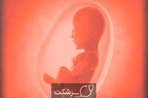 تشخیص علت سقط جنین مکرر | پزشکت