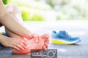 ورم کف پا چیست؟ 4 | پزشکت