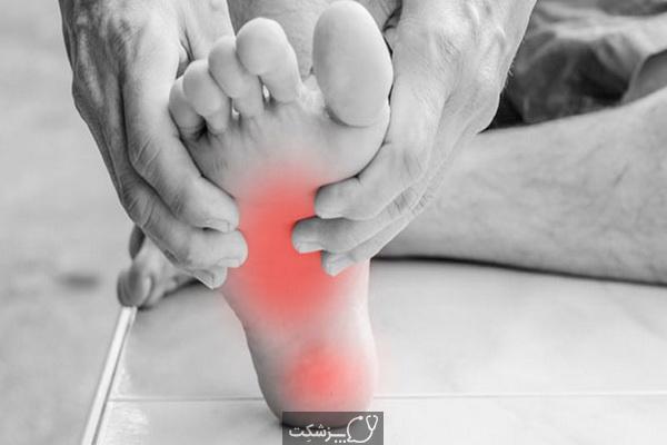 ورم کف پا چیست؟ 3 | پزشکت