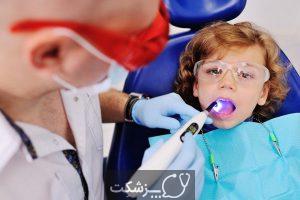 سیاه و یا زرد شدن دندان در کودکان