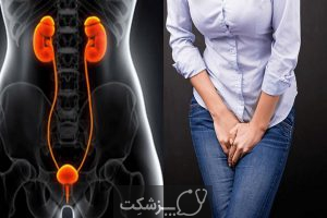 عفونت های پس از زایمان 4 | پزشکت