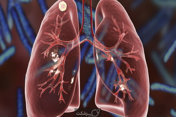 علائم خاموش ریه خراب 4 | پزشکت