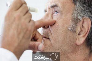 زونای چشمی    پزشکت