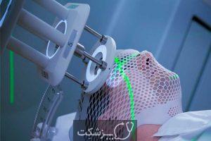 مننژیوم 2 | پزشکت