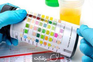 علائم عفونت مثانه را بشناسید. 6 | پزشکت