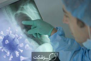 آسیب های ریوی کرونا | پزشکت