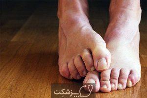 چگونه قارچ ناخن پا را درمان کنیم؟ 4   پزشکت