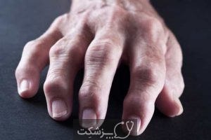 علت ورم انگشت دست چيست؟   پزشکت
