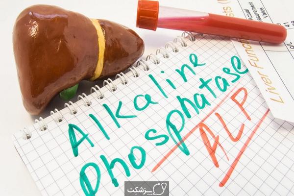 آزمایش ALP | پزشکت