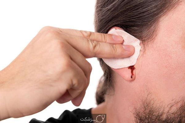 خونریزی گوش، علل و روش های درمانی | پزشکت