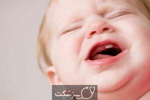 علائم دندان درآوردن کودکان و مراقبت آنها   پزشکت