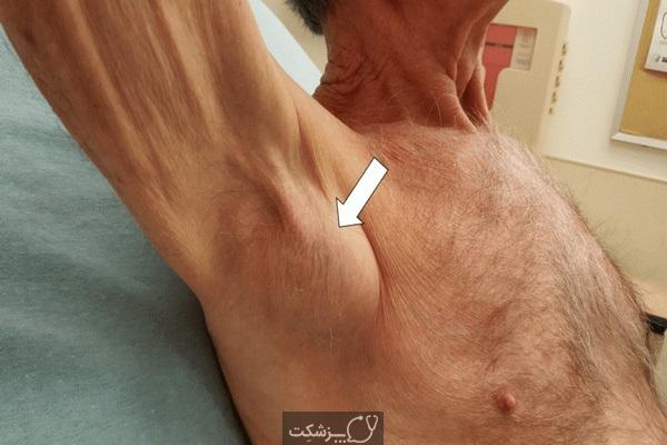 لنفادنوپاتی زیر بغل چیست؟ | پزشکت