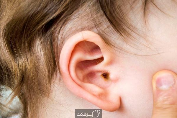 علل درد پشت گوش چیست؟ | پزشکت